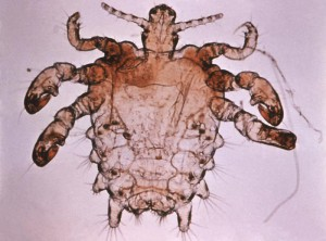 Phthirus pubis, the louse that causes scabies. Image from the Public Health Image Library.