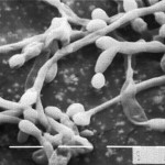 Candida albicans, as seen in a scanning electron micrograph. Image: Emerging Infectious Diseases